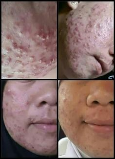 People only knw about apple stemcell.. most of them do not know that there is combination of apple+argan+grape stemcell.. this product is great for skin! Do whatsapp me for more info and cheap price as low as MYR135.. +60163453516