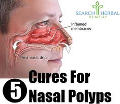 5 Most Effective Herbal Remedies For Nasal Polyps - Natural Treatments & Cure For Nasal Polyps | Search Herbal & Home Remedy