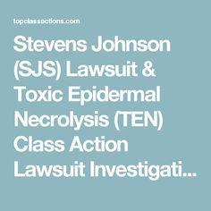 Stevens Johnson (SJS) Lawsuit & Toxic Epidermal Necrolysis (TEN) Class Action Lawsuit Investigation