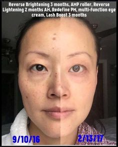 Rodan + Fields gives you the best skin of your life and the confidence that comes with it. Created by Stanford-trained Dermatologists, we understand skin. Our easy-to-use Regimens take the guesswork out of skincare so you can see transformative results. Rodan And Fields Reverse, Rodan And Fields Redefine, Amp Roller, Crows Feet, Eye Cream, Good Skin, Sensitive Skin, Anti Aging, Lashes
