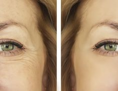 She erased her wrinkles in 3 days with this formula from her grandmother – Nourishment Huile Anti Ride, Anastasia, Beauty Care, Hair Beauty, Vaseline, Ayurveda, Clear Skin, Skin Care Tips, Home Remedies