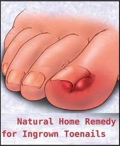 Natural Home Remedy for Ingrown Toenails I'm going to have to tell my mom about this one. We will see if it works.