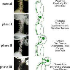 Yoga, Massage, Alexander Technique, NISA, Rolfing, Ikeokinesis, Chiropractic Care, Jin Shin Jyutsu, and Feldenkrais Method prevent and correct postural decay.