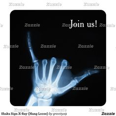 #Shaka Sign X-Ray ( #HangLoose) Card - Time to PARTY ON! ~ Invite your friends and family to your fun event with this Blue x-ray of the 'hang loose' Shaka hand sign. This invitation can be customized by adding a photo and your text information. #gravityx9 #radiology #xray