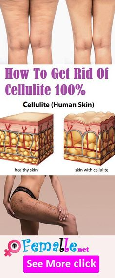How To Get Rid Of Cellulite 100%