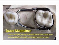 A space maintainer is a device cemented to one tooth with an arm that spans a space and contacts a tooth on the other side of the span. It is typically used when a baby tooth is removed/extracted before its adult counterpart is ready to erupt. Space maintainers are typically only used for the posterior teeth. They are essential to prevent drifting and crowding of the teeth. This undesirable tooth movement may require complicated orthodontics to correct. #PediatricDentistry
