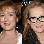 Meryl Streep has had neck lifts, eyelid surgery or at the very least Botox or laser rejuvenation treatments. Actress' skin looks plump and even youthful. Laser Rejuvenation, Neck Lift, Eyelid Surgery, Celebrity Plastic Surgery, Cosmetic Procedures, Meryl Streep, Celebrity Photos, Actresses, Celebrities