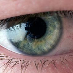 Vision Rehab for Hemianopsia on ADVANCE for Occupational Therapy Practitioners. Pinned by SOS Inc. Resources @sostherapy.