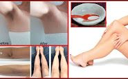 Remove Dark Skin on Neck, Armpits, Elbows, Knees with This Powerful Treatments Thyroid Health, Oral Health, Health Tips, Health Care, Blood Pressure, Varicose Veins Causes, Wusthof Knives, How To Relieve Migraines