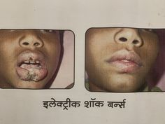 Bebmde Cosmetic Surgery specialists Hospital in Aurangabad, Maharashtra Provides plastic and cosmetic surgeries like Facial implants, Liposuction, Breast Implant, Hair Transplant. Burns Care, Facial Implant, Hair Transplant, Liposuction, Plastic Surgery, Breast, Lips, Cosmetics