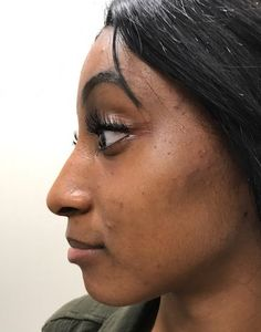 After photo of 26 year old female treated with Voluma for cheek enhancement Cheek Contouring, Facial Fillers, Face Facial, Body Sculpting, Surgery, Cosmetics, Female, Hair, Strengthen Hair
