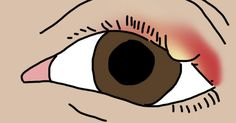 For those of us who suffer from the occasional stye, we know just how uncomfortable, irritating, and painful they can be. And forming right on the lid of the eye, they really couldn't occur in a worse location. And since a stye can last anywhere from a few days to a couple of weeks, I have... View Article