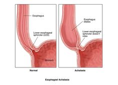 Achalasia Difficulty Swallowing Food and Liquids