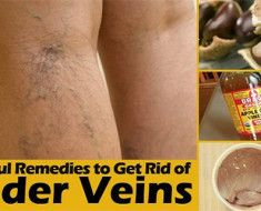How-To-Cure-Drooping-Veins