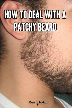 Right now your face has all the beard follicles it will ever need to grow a thick beard, and if you study a few of these treatments for dealing with a bald spot in beard, you could enjoy that thick full beard that you desire. From Beardoholic.com