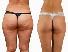 Diary of a Fit Mommy: Say Goodbye to Cellulite for Summer!