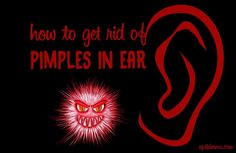 Do you feel a sharp pain in your ear? If so, you may have a pimple in your ear canal. But don't worry, there are ways you can solve this problem by yourself. This page will give you tips on how to soothe sore zits in ear and get rid of pimples naturally. Pimples in ear are usually not dangerous, but they can be quite annoying and painful.