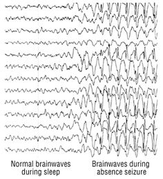 eeg images - Google Search