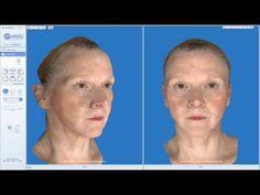 Il n'y a pas un mais plusieurs types de litfing du visage. Découvrez chacun d'entre eux et comment ils sont adaptés aux différentes parties d'un visage qui a vieilli