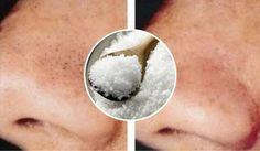 La sal es un ingrediente ideal para combatir los puntos negros y las espinillas.Te vamos a mostrar 3 tratamientos para aprovecharla.