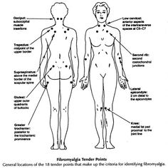 Fibromyalgia Tender point Chart
