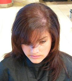 Real Help For Thinning Hair In Women Over 50 Thin Hair