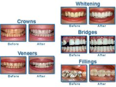 Teeth whitening items uses products consisting of peroxide to offer the teeth a white and clean appearance. You can either check out the cosmetic dental expert or utilize a home-based lightening system. Laser Dentistry, Cosmetic Dentistry, Mouth Problems, Veneers Teeth, Dental Cosmetics, Family Dentistry, Dental Care, Teeth Whitening, Dental Center