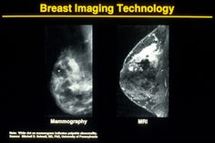 Mammogram Images, Descriptions and Details: Mammogram and MRI Breast Images Comparison