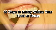 Want to whiten your teeth? We present to you 15 ways DIY teeth whitening you can do from the comfort of your own house. Go check out this new published content.