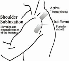 Info on e-stim placement for subluxation, general UE after stroke- good picture to give to OT students! Stroke Therapy, Ot Therapy, Hand Therapy, Therapy Tools, Physical Therapy, Therapy Ideas, Certified Occupational Therapy Assistant, Occupational Therapist, Fibromyalgia