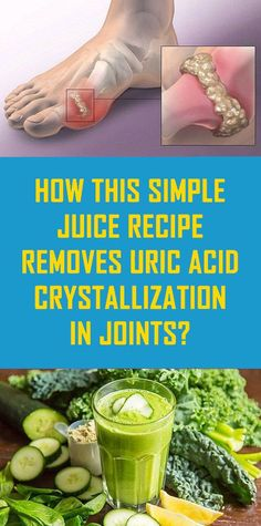 Easy Ways To Remove Uric Acid From Your Joints - Natural Cures/Green Products - juice Herbal Remedies, Health Remedies, Health Facts, Health Tips, Kids Health, Health Articles, Mental Health, Health Care, Easy Juice Recipes