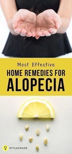is no cure for alopecia but there are some ways to keep these under check, and they are surgeries for those with baldness too. Let first have a look at the different types before we run to the alopecia hair loss treatment. Baby Hair Loss, Hair Loss Cure, Anti Hair Loss, Hair Loss Remedies, Prevent Hair Loss, Argan Oil For Hair Loss, Best Hair Loss Shampoo, Biotin For Hair Loss, Biotin Hair