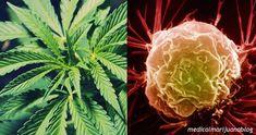 Marihuana posiluje imunitní systém a zabíjí rakovinné buňky, zjistili němečtí lékaři