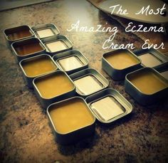 This is the BEST Eczma cream ever.  Christmas gift idea?