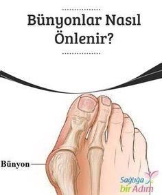 Bünyonlar Nasıl Önlenir? Bünyonlar #ayaklarınızda ortaya #çıkabilecek en çok acı veren ve sıkça #görülen #bozukluklardan biridir.