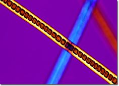 angora rabbit fiber under microscope - Google Search