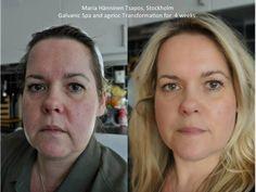 Efectos del tratamiento de ageLoc en 4 semanas