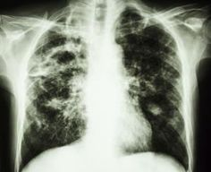 What is Pulmonary Fibrosis and What are the Causes and Prognosis?: What is pulmonary fibrosis?