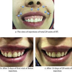 a: The sites of injections of total 20 units of BT. b: After 5 days of... | Download Scientific Diagram Facial Fillers, Botox Fillers, Dermal Fillers, Lip Fillers, Botox Injection Sites, Botox Injections, Cosmetic Dentistry Procedures, Implant Dentistry, Relleno Facial