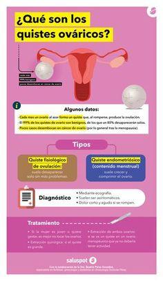 Infografía sobre quistes ováricos en colaboración con la Dra. Beatriz Pérez González.