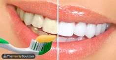 Natural teeth whitening! Put This Spice on Your Toothbrush, and You'll Never Waste Money On  Teeth Whitening Strips Again via @healthyhomestea