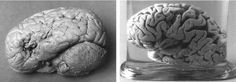 Broca's area is thought to be involved primarily in the production of speech. Lateral views of the brains of Leborgne (left) and Lelong (right). Broca preserved the organs by immersing them in alcohol; he then donated them to the Musée Dupuytren in Paris.