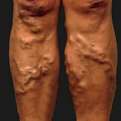 Top 12 Natural Cures for Varicose Veins