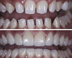 Before and After: Patient was born with congenitally smaller teeth, and gaps between them were readily apparent. Orthodontic treatment, such as traditional braces, was ineffective. Original teeth were minimally reduced and prepped. Sixteen porcelain laminate veneers were placed, closing the gaps between the teeth and resulting in an even smile. www.olivadds.com