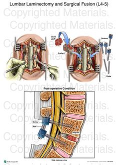 Lumbar Laminectomy and Surgical Fusion Back Surgery, Spine Surgery, Cervical Spinal Stenosis, Content Tools, Degenerative Disc Disease, Ankylosing Spondylitis, Chronic Pain, Fibromyalgia, Spinal Cord
