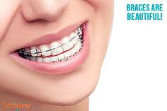 Smiline Dental is best Orthodontics in Hyderabad, Madhapur and Punjagutta. Orthodontic is teeth braces, that improve the positioning of the teeth.