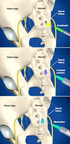 A caudal steroid injection is performed to relieve low back and radiating leg pain. The steroid medication can reduce the swelling and inflammation caused by spinal conditions, such as spinal stenosis, radiculopathy, sciatica and herniated discs. #spine #health  http://www.southeasternspine.com/procedures-treatments/caudal-steroid-injection/