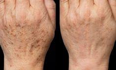 S touto maskou zabudnete na botox: domáca maska, ktorá vymaže všetky vrásky! Beauty Skin, Health And Beauty, Brown Spots On Hands, Dark Spots, Age Spot Removal, Remover Manchas, Beauty Hacks Eyelashes, Acne Scar Removal, Acne Remedies