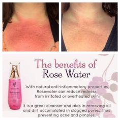 Younique makeup  Rose water  https://www.youniqueproducts.com/anderson55/products/view/US-11501-01