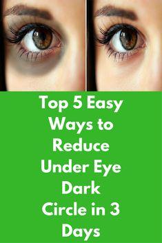 Top 5 Easy Ways to Reduce Under Eye Dark Circle in 3 Days Dark discoloration of skin under the eyes is referred as dark … Creme Anti Age, Anti Aging Cream, Dry Eyes Causes, Dark Circles Under Eyes, Eyes Problems, Sombre, Puffy Eyes, Dark Eyes, Top 5